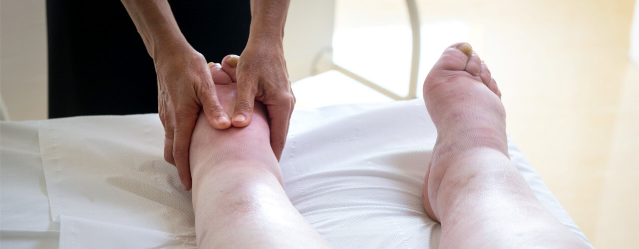 Lymphedema Oakville, ON